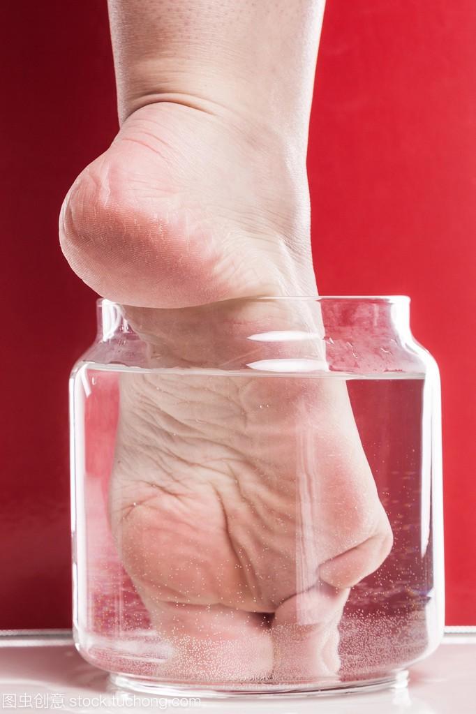 脚干燥和粗糙的皮肤和女生脚后跟v皮肤委员的15岁老茧斑长脸上图片
