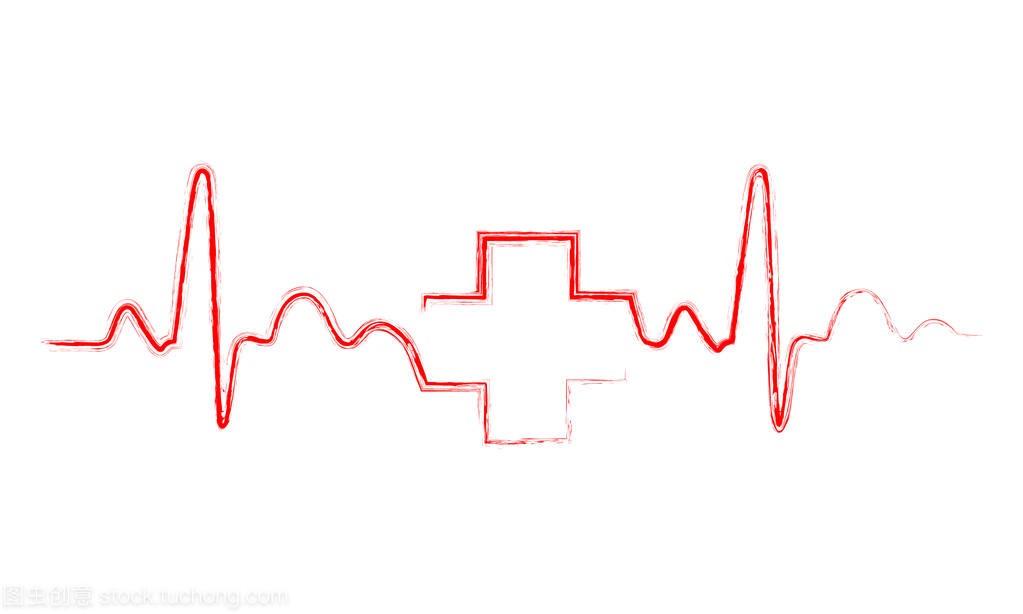 心跳模型与管线的综合。矢量图交叉管廊医学标志绘制图片