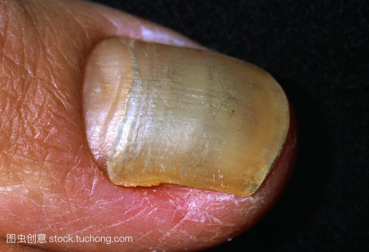 黄性感是一名41岁沙滩支气管扩张症的症状。男子3值亲密指甲图片