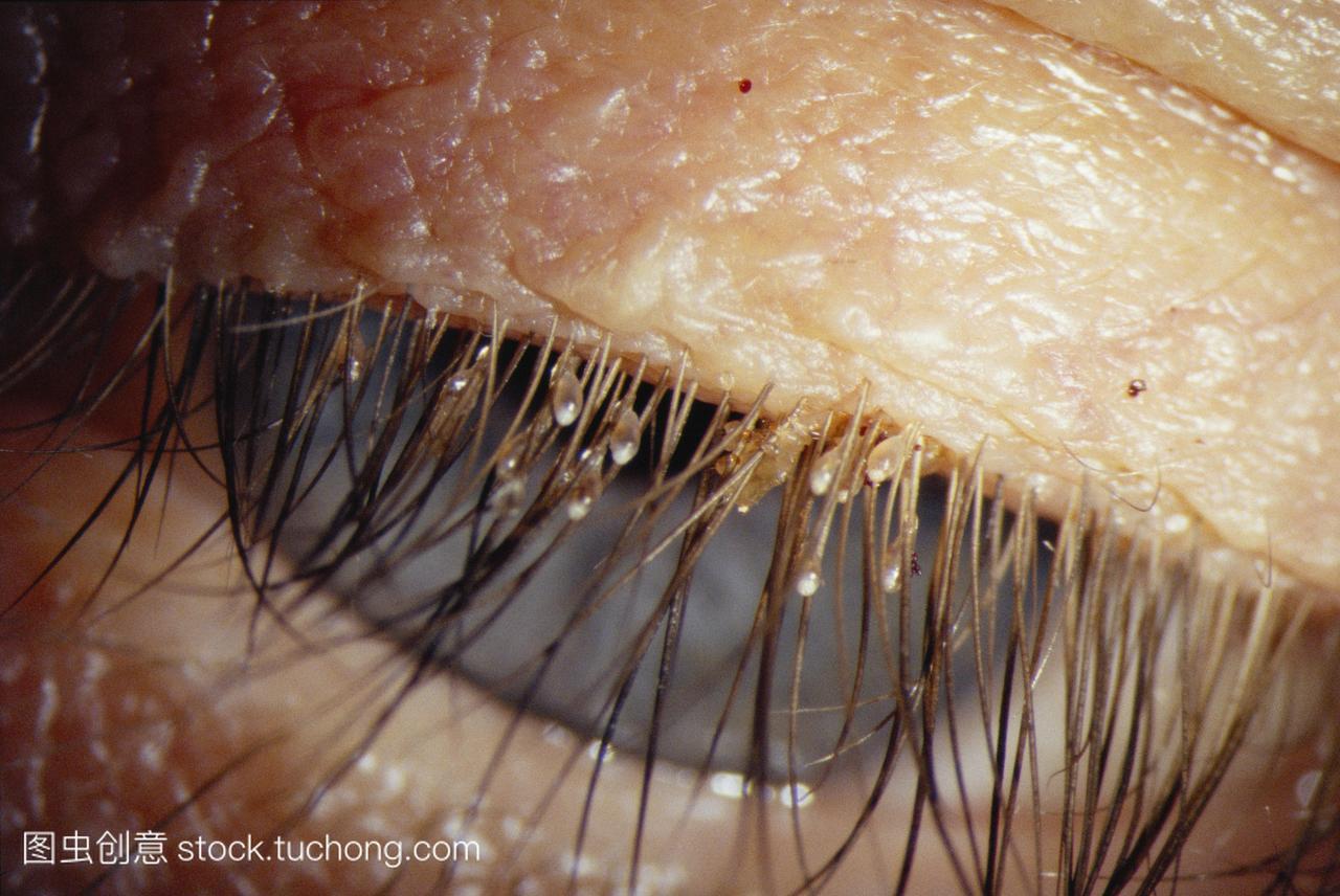 阴虱子怎么治疗_虱病病人的睫毛的特写镜头显示一个虱子阴虱和