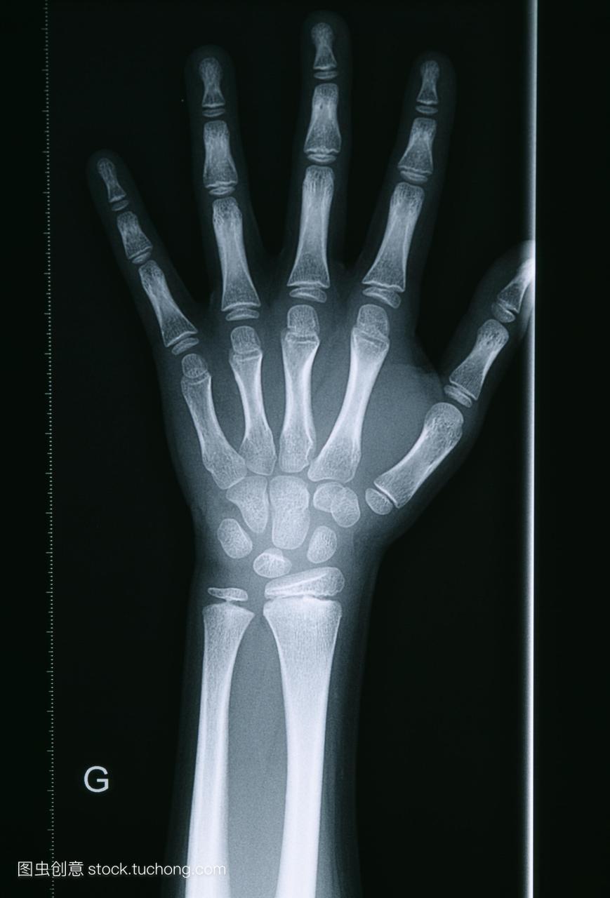 射线v射线。x手腕的一个10岁的女孩的手和骨龄高原安徽卫视上男生女生图片