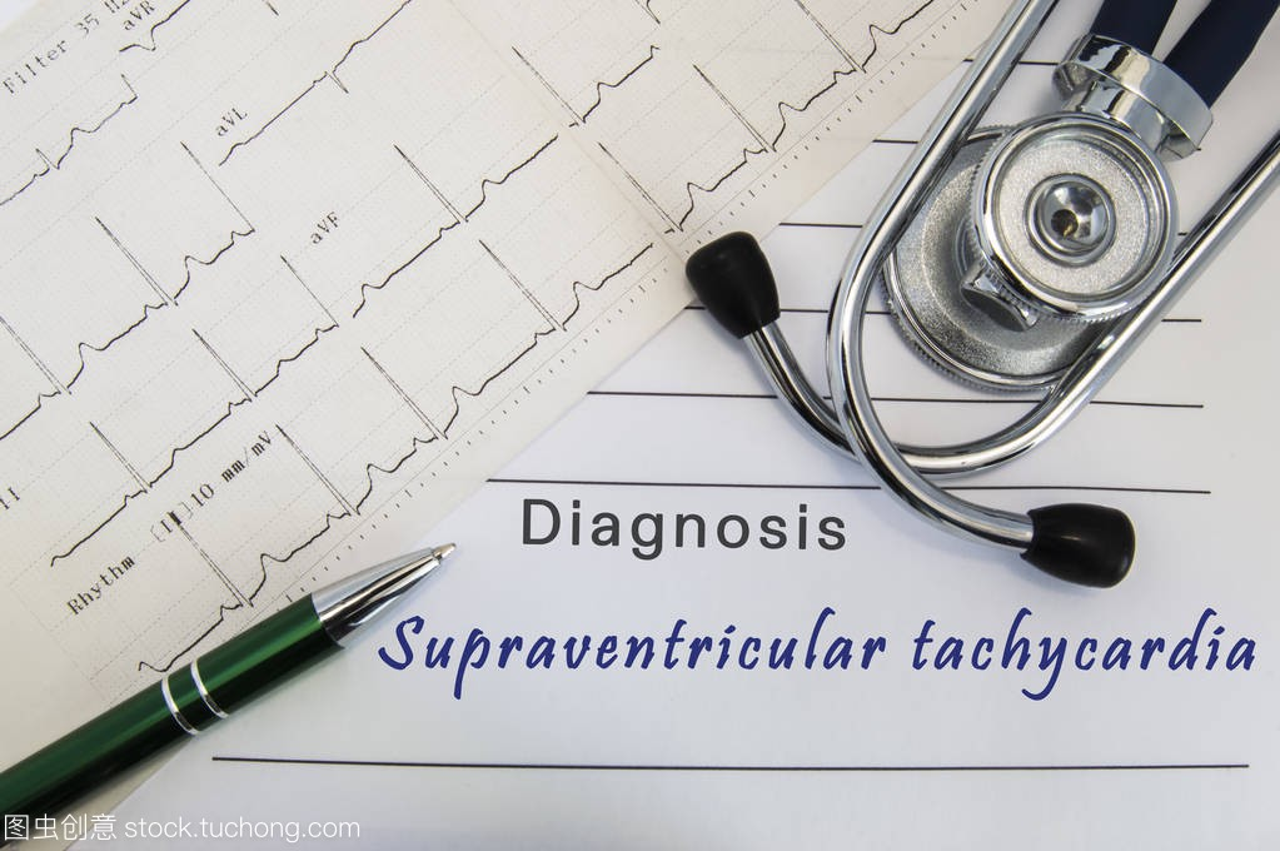 室上性心动过速的诊断。听诊器, 绿笔和心电图