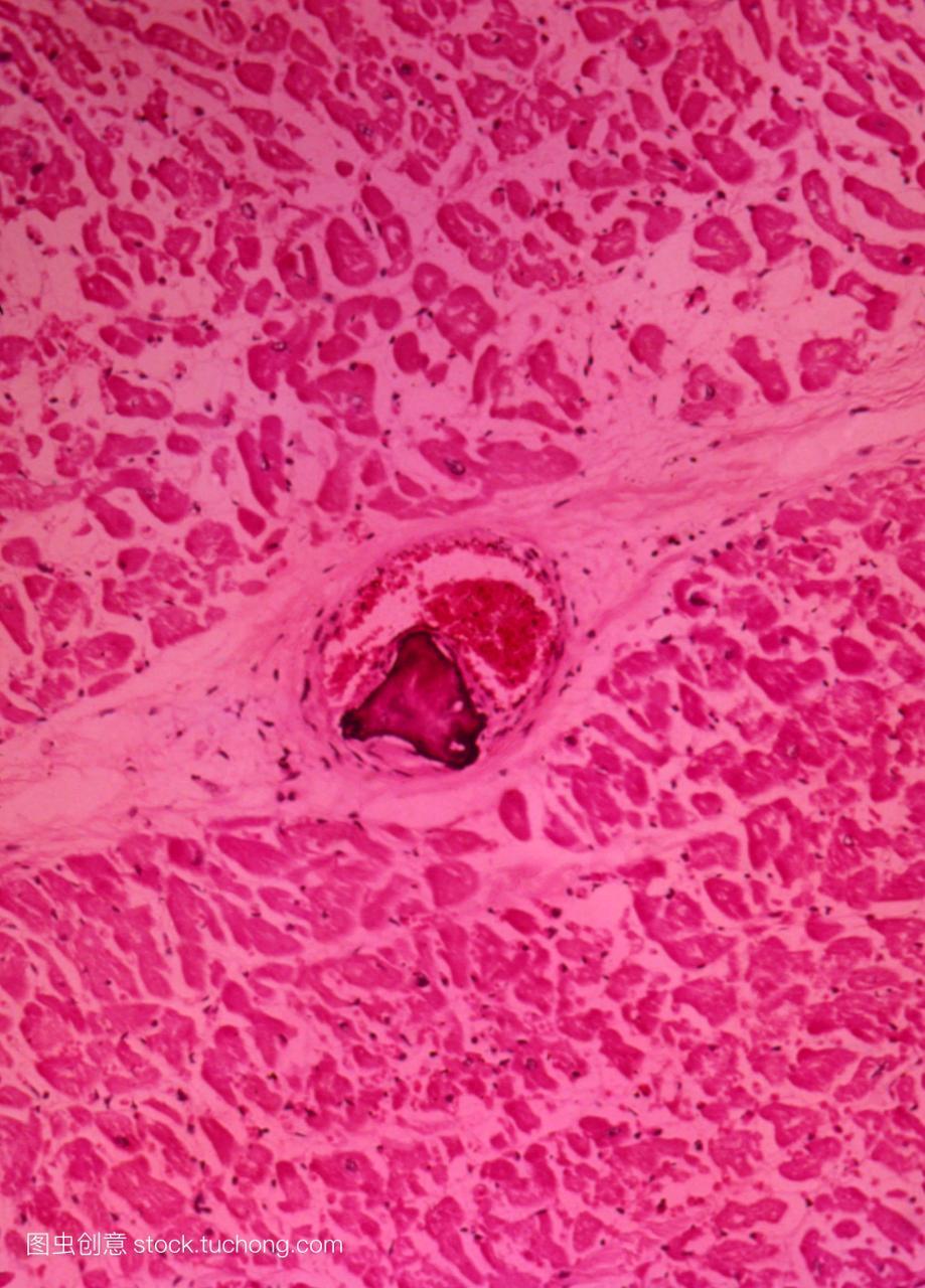 光显微照片一段人类从左心室心肌心肌显示冠状