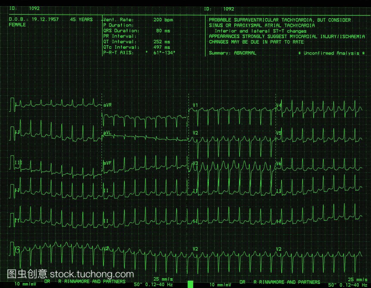 心脏病。心跳的异常心电图ECG一位45岁的女