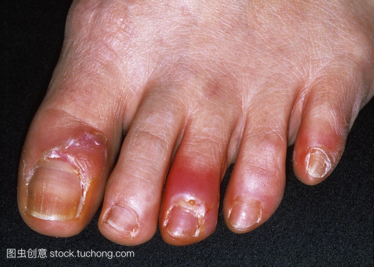 在脚趾甲沟炎。从paryonychias脓黄色泄漏或者